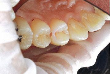 虫歯治療中