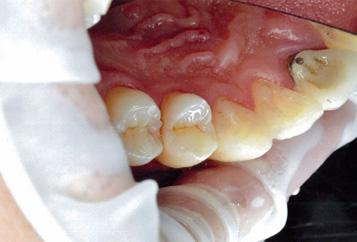 虫歯治療後