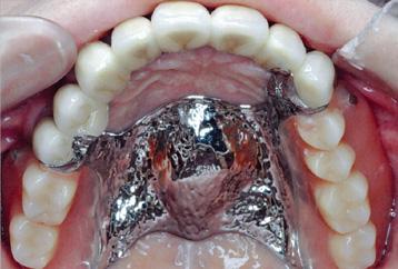 バネのない義歯によるフルマウスリコントラクション後(義歯制作小林克彦技工士)